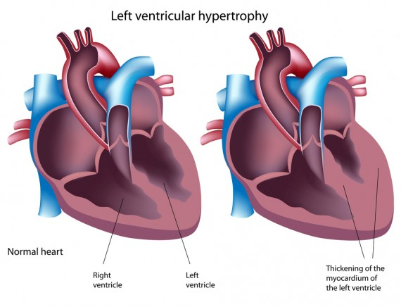 Anabolic steroids and left ventricular hypertrophy of the heart