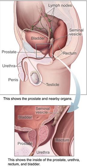 Prostate Health on Testosterone Replacement Therapy